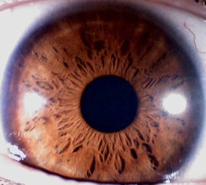 Photo capture d'iris prise avec l'Iriscope numérique pour l'iridologie (Model:IRS-8200U)