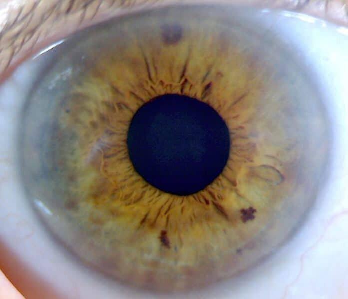 Photo d'un bel iris pour bilan iridologique formation-luminothérapie.com Martine Roux